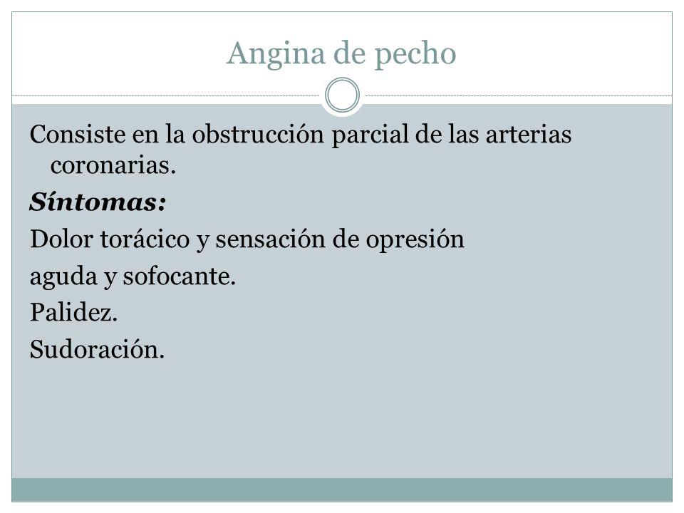 Angina de pecho Consiste en la obstrucción parcial de las arterias coronarias.