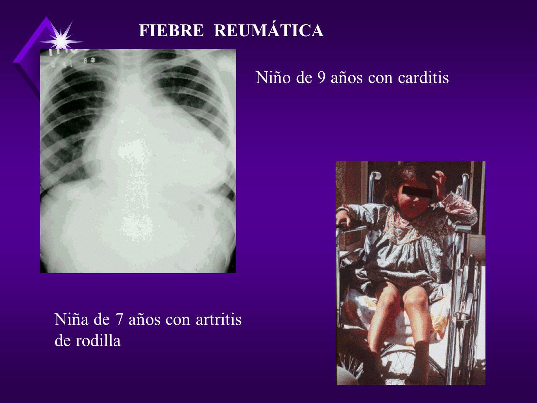 FIEBRE REUMÁTICA Niño de 9 años con carditis Niña de 7 años con artritis de rodilla