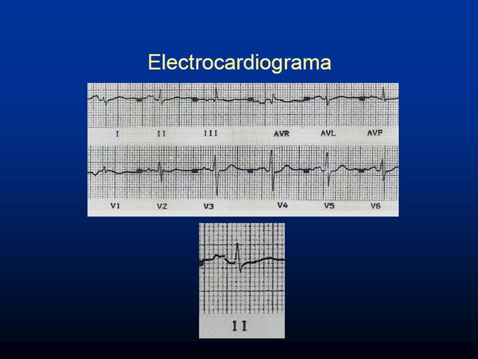 ESTENOSIS MITRAL ECG: P mitral. aQRS derecho CVD y SS AC X FA
