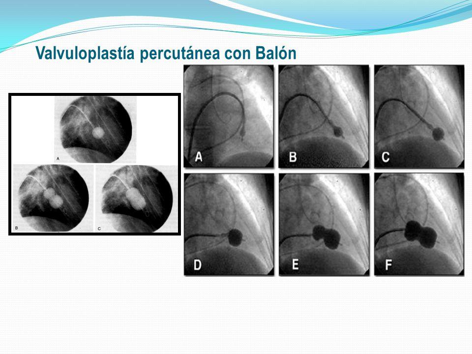 Tratamiento: Valvuloplastía percutánea Mitral Primer procedimiento realizado en 1982.