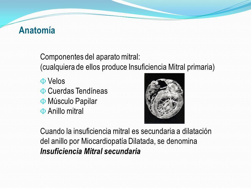Insuficiencia Mitral Enfermedad Valvular Mixomatosa; Prolapso de VM.