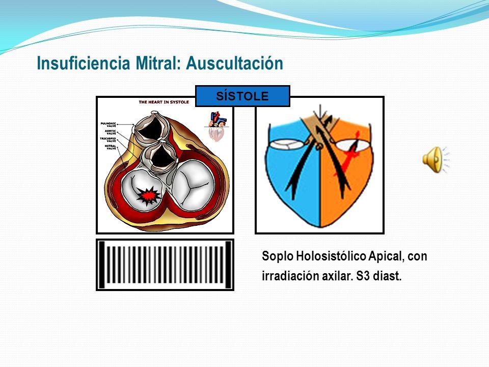 Insuficiencia Mitral Puede haber hipertensión pulmonar asociada: ingurgitación yugular; hepatomegalia congestiva. En caso de IM compensada: Choque de