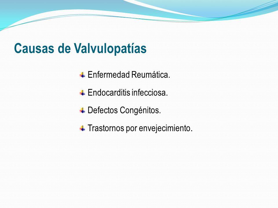 Valvulopatías: Soplos característicos Soplos sistólicos : Estenosis Aórtica, Estenosis Pulmonar, Insuficiencia Mitral, Insuficiencia Tricuspídea.