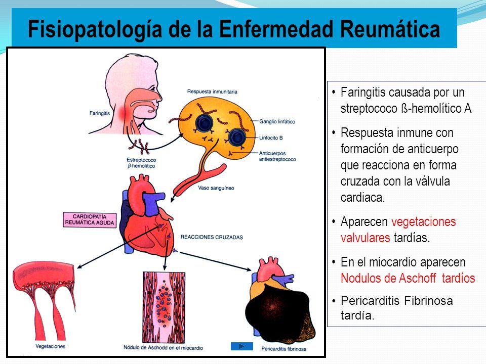 Causas de Valvulopatías Enfermedad Reumática. Endocarditis infecciosa. Defectos Congénitos. Trastornos por envejecimiento.