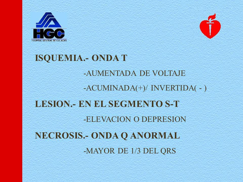 ISQUEMIA.- ONDA T -AUMENTADA DE VOLTAJE -ACUMINADA(+)/ INVERTIDA( - ) LESION.- EN EL SEGMENTO S-T -ELEVACION O DEPRESION NECROSIS.- ONDA Q ANORMAL -MAYOR DE 1/3 DEL QRS