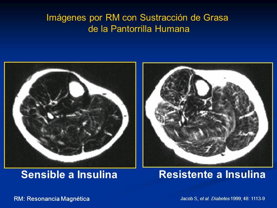 Imágenes por RM con Sustracción de Grasa de la Pantorrilla Humana Sensible a Insulina Resistente a Insulina RM: Resonancia Magnética Jacob S, et al. D