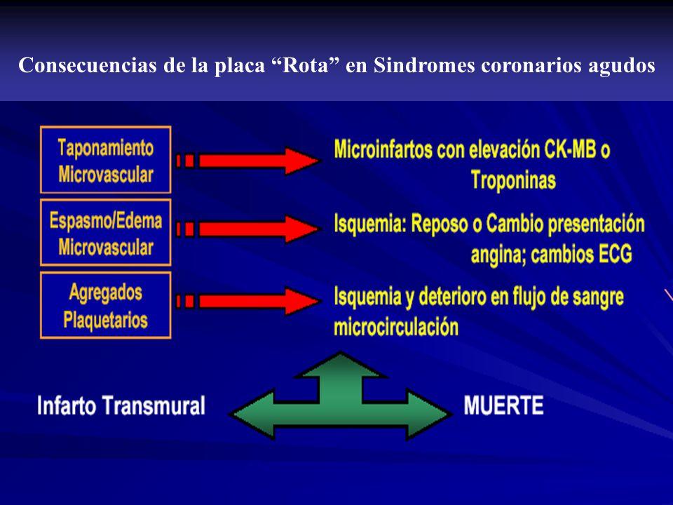 Consecuencias de la placa Rota en Sindromes coronarios agudos