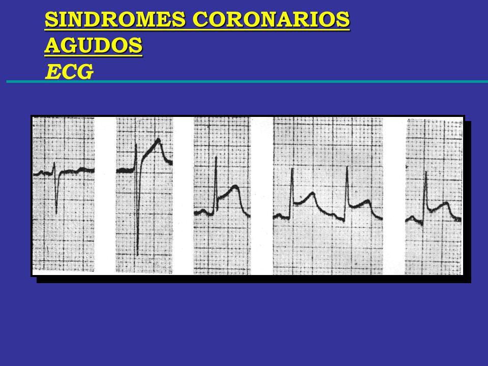 SINDROMES CORONARIOS AGUDOS ECG