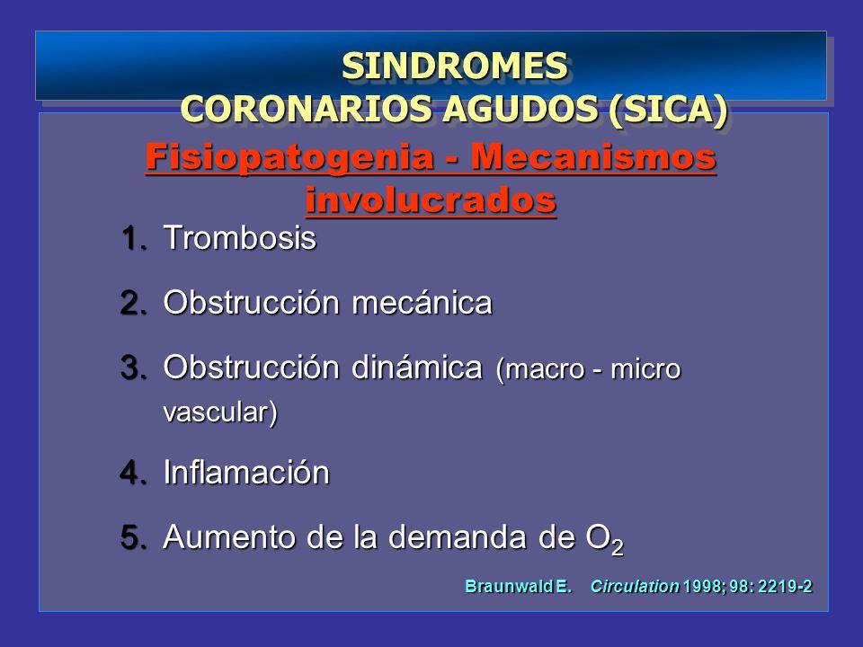 SINDROMES CORONARIOS AGUDOS (SICA) SINDROMES 1.Trombosis 2.Obstrucción mecánica 3.Obstrucción dinámica (macro - micro vascular) 4.Inflamación 5.Aument