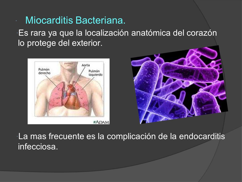 Miocarditis Bacteriana.