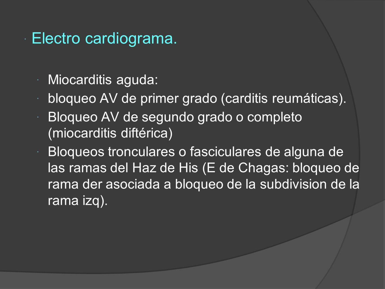 Electro cardiograma.Miocarditis aguda: bloqueo AV de primer grado (carditis reumáticas).