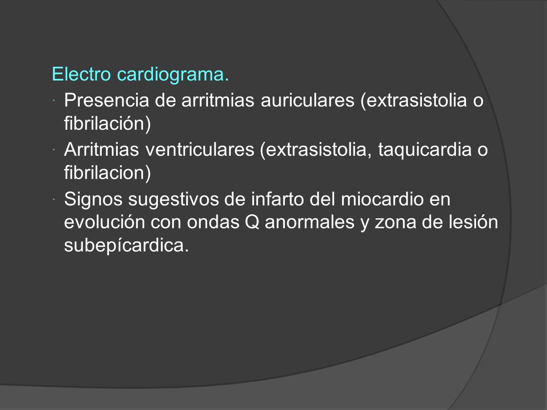 Electro cardiograma.