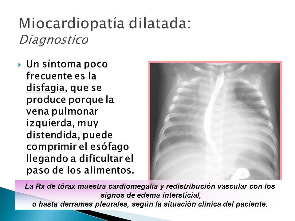 Un síntoma poco frecuente es la disfagia, que se produce porque la vena pulmonar izquierda, muy distendida, puede comprimir el esófago llegando a dificultar el paso de los alimentos.