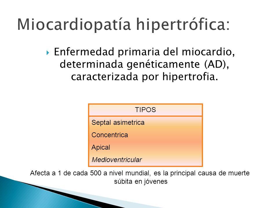 Enfermedad primaria del miocardio, determinada genéticamente (AD), caracterizada por hipertrofia.