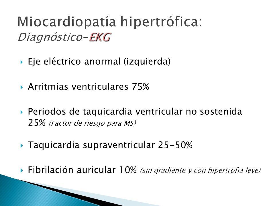 Eje eléctrico anormal (izquierda) Arritmias ventriculares 75% Periodos de taquicardia ventricular no sostenida 25% (Factor de riesgo para MS) Taquicardia supraventricular 25-50% Fibrilación auricular 10% (sin gradiente y con hipertrofia leve)