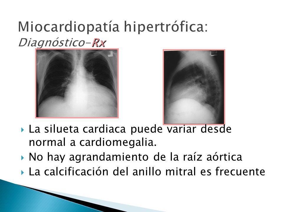 La silueta cardiaca puede variar desde normal a cardiomegalia.