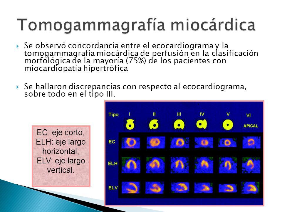 Se observó concordancia entre el ecocardiograma y la tomogammagrafía miocárdica de perfusión en la clasificación morfológica de la mayoría (75%) de los pacientes con miocardiopatía hipertrófica Se hallaron discrepancias con respecto al ecocardiograma, sobre todo en el tipo III.