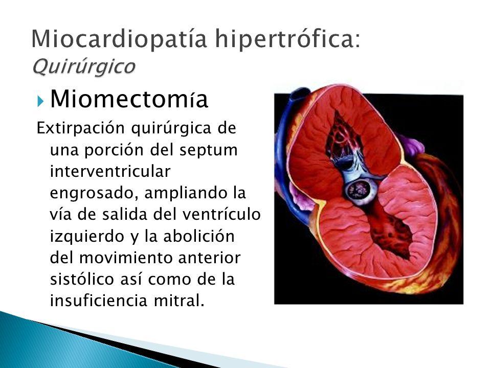 í Miomectom í a Extirpación quirúrgica de una porción del septum interventricular engrosado, ampliando la vía de salida del ventrículo izquierdo y la abolición del movimiento anterior sistólico así como de la insuficiencia mitral.
