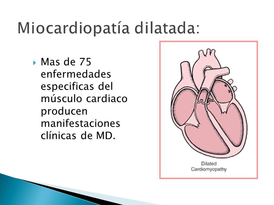 Mas de 75 enfermedades especificas del músculo cardiaco producen manifestaciones clínicas de MD.