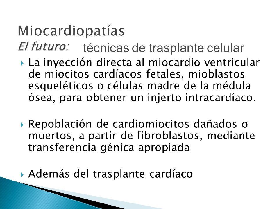 La inyección directa al miocardio ventricular de miocitos cardíacos fetales, mioblastos esqueléticos o células madre de la médula ósea, para obtener un injerto intracardíaco.