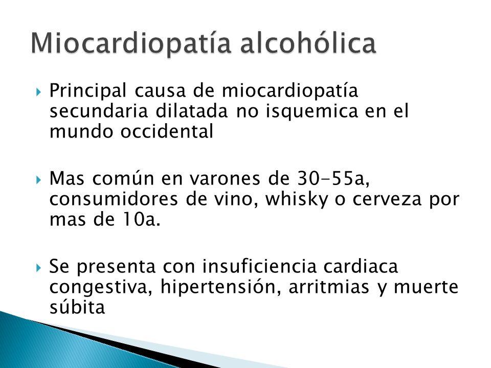 Principal causa de miocardiopatía secundaria dilatada no isquemica en el mundo occidental Mas común en varones de 30-55a, consumidores de vino, whisky o cerveza por mas de 10a.