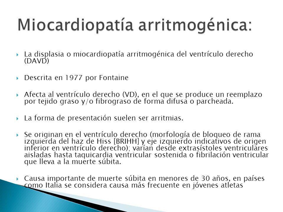 La displasia o miocardiopatía arritmogénica del ventrículo derecho (DAVD) Descrita en 1977 por Fontaine Afecta al ventrículo derecho (VD), en el que se produce un reemplazo por tejido graso y/o fibrograso de forma difusa o parcheada.