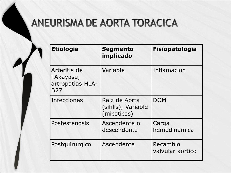 Etiologia Segmento implicado Fisiopatologia Arteritis de TAkayasu, artropatias HLA- B27 VariableInflamacion InfeccionesRaiz de Aorta (sifilis), Variable (micoticos) DQM PostestenosisAscendente o descendente Carga hemodinamica PostquirurgicoAscendenteRecambio valvular aortico