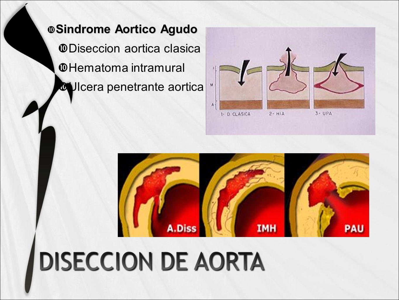 Sindrome Aortico Agudo Sindrome Aortico Agudo Diseccion aortica clasica Hematoma intramural Ulcera penetrante aortica