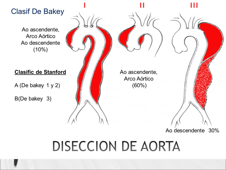 Ao ascendente, Arco Aórtico Ao descendente (10%) Ao ascendente, Arco Aórtico (60%) Ao descendente 30% Clasific de Stanford A (De bakey 1 y 2) B(De bakey 3) Clasif De Bakey
