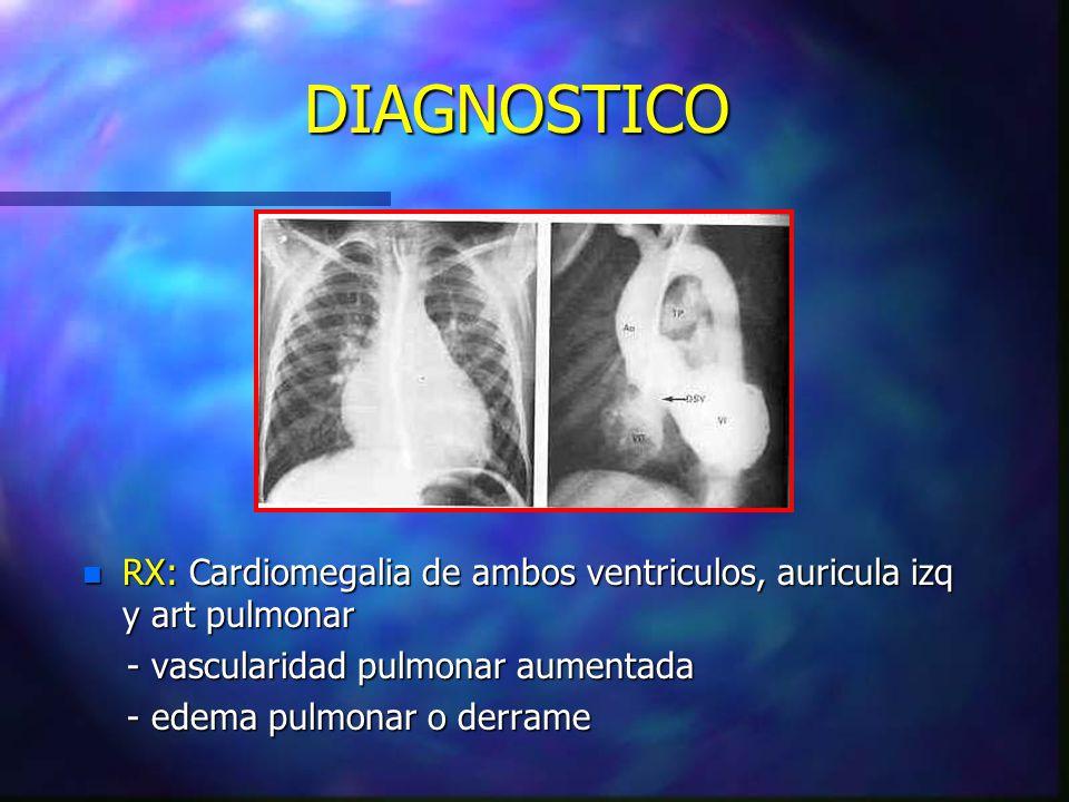 DIAGNOSTICO n RX: Cardiomegalia de ambos ventriculos, auricula izq y art pulmonar - vascularidad pulmonar aumentada - vascularidad pulmonar aumentada