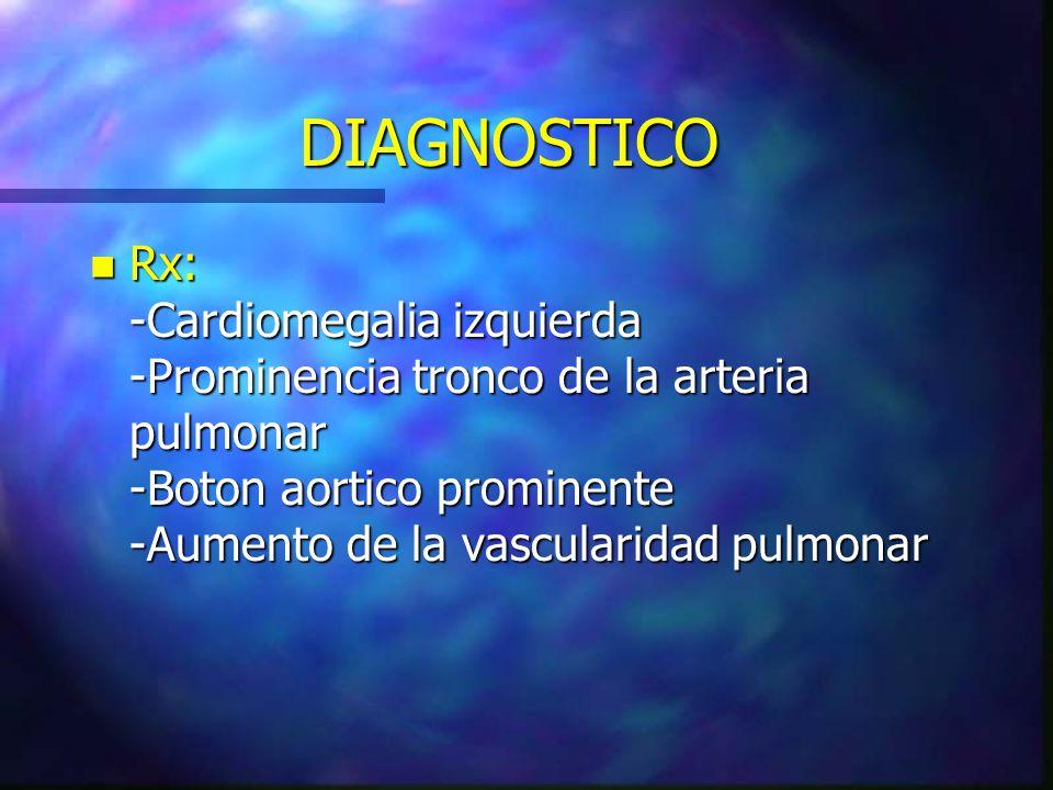 DIAGNOSTICO n Rx: -Cardiomegalia izquierda -Prominencia tronco de la arteria pulmonar -Boton aortico prominente -Aumento de la vascularidad pulmonar