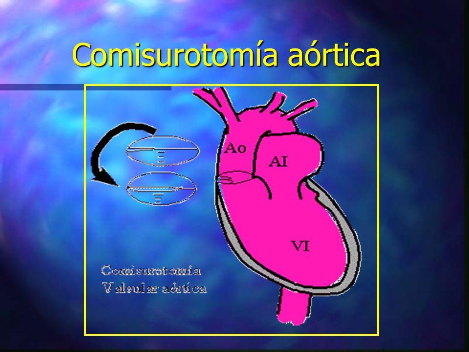 Comisurotomía aórtica