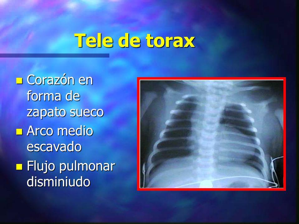 Tele de torax n Corazón en forma de zapato sueco n Arco medio escavado n Flujo pulmonar disminiudo