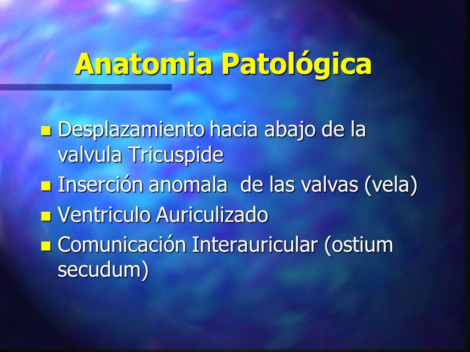 Anatomia Patológica n Desplazamiento hacia abajo de la valvula Tricuspide n Inserción anomala de las valvas (vela) n Ventriculo Auriculizado n Comunic