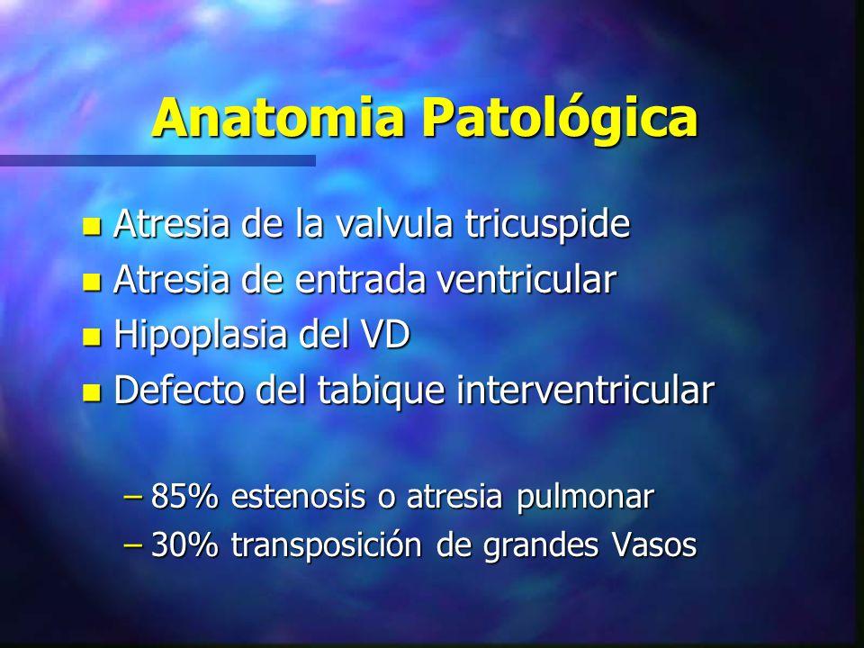 Anatomia Patológica n Atresia de la valvula tricuspide n Atresia de entrada ventricular n Hipoplasia del VD n Defecto del tabique interventricular –85