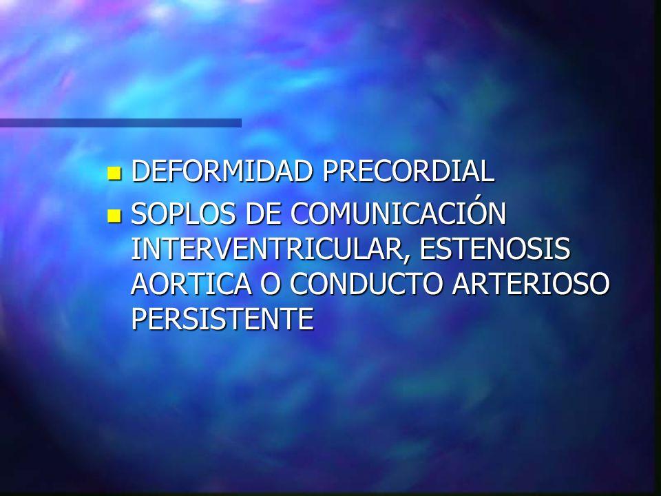 n DEFORMIDAD PRECORDIAL n SOPLOS DE COMUNICACIÓN INTERVENTRICULAR, ESTENOSIS AORTICA O CONDUCTO ARTERIOSO PERSISTENTE
