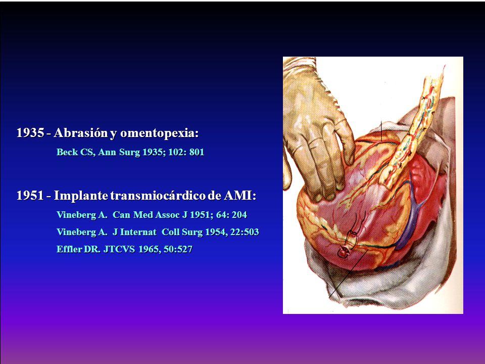 1935 - Abrasión y omentopexia: Beck CS, Ann Surg 1935; 102: 801 1951 - Implante transmiocárdico de AMI: Vineberg A. Can Med Assoc J 1951; 64: 204 Vine
