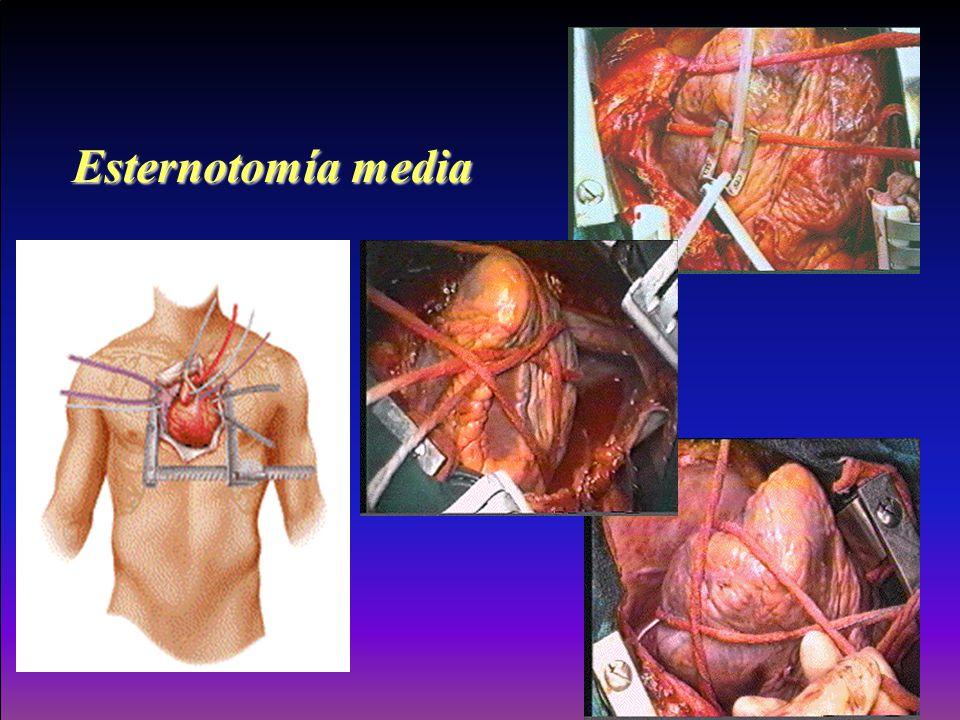 Esternotomía media