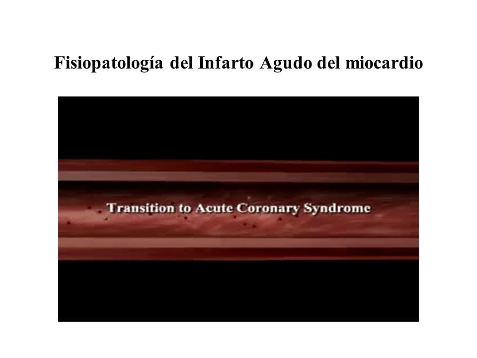 FLUJOPERMEABILIDADMORTALIDAD (15-30 DIAS) TIMI 0OCLUIDA8.8% TIMI 1INFILTRA TROMBO NO PERFUNDE 8.8% TIMI 2ABIERTA CON FLUJO LENTO 7% TIMI 3FLUJO NORMAL3.7% PERMEABILIDADY FLUJO DEL VASO