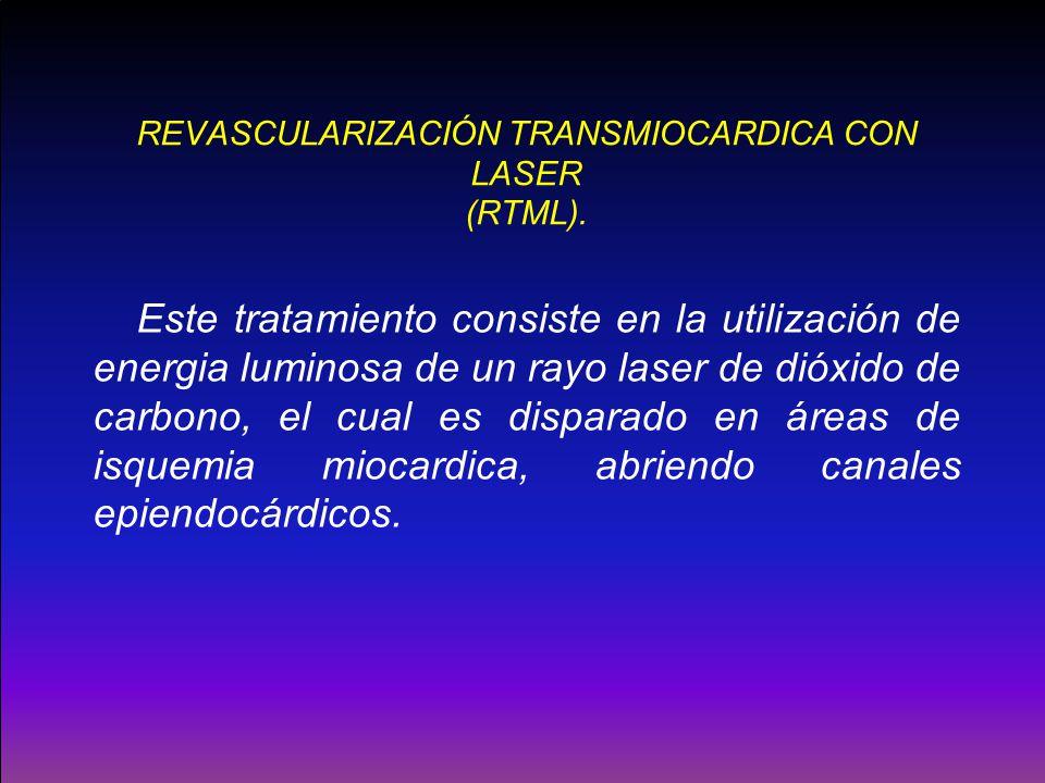 REVASCULARIZACIÓN TRANSMIOCARDICA CON LASER (RTML). Este tratamiento consiste en la utilización de energia luminosa de un rayo laser de dióxido de car