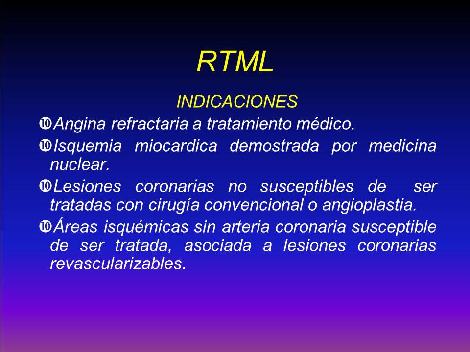 RTML INDICACIONES Angina refractaria a tratamiento médico. Isquemia miocardica demostrada por medicina nuclear. Lesiones coronarias no susceptibles de
