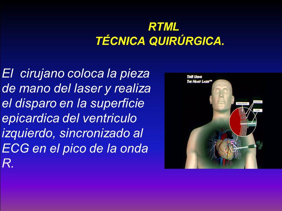 RTML TÉCNICA QUIRÚRGICA. El cirujano coloca la pieza de mano del laser y realiza el disparo en la superficie epicardica del ventriculo izquierdo, sinc