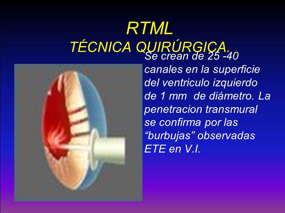 RTML TÉCNICA QUIRÚRGICA. Se crean de 25 -40 canales en la superficie del ventriculo izquierdo de 1 mm de diámetro. La penetracion transmural se confir