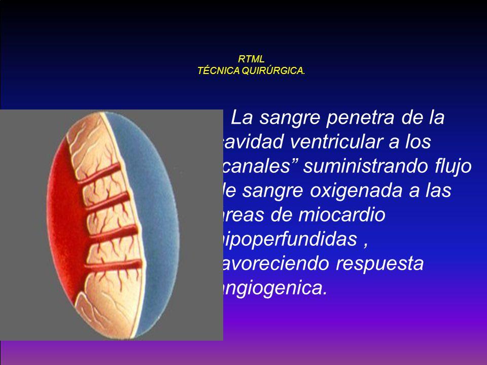RTML TÉCNICA QUIRÚRGICA. La sangre penetra de la cavidad ventricular a los canales suministrando flujo de sangre oxigenada a las áreas de miocardio hi