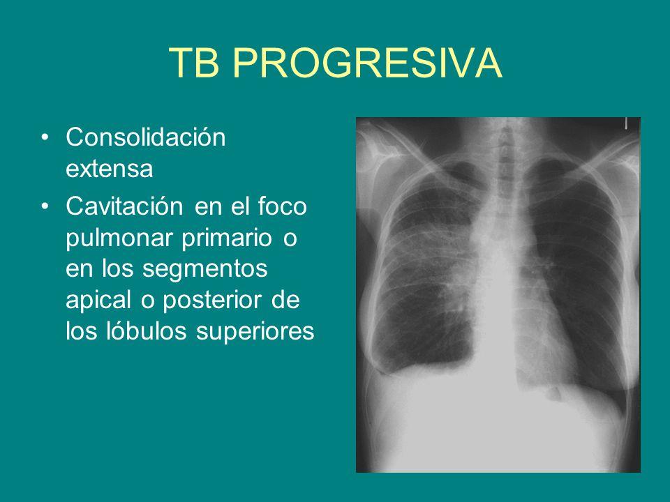 TB PROGRESIVA Consolidación extensa Cavitación en el foco pulmonar primario o en los segmentos apical o posterior de los lóbulos superiores