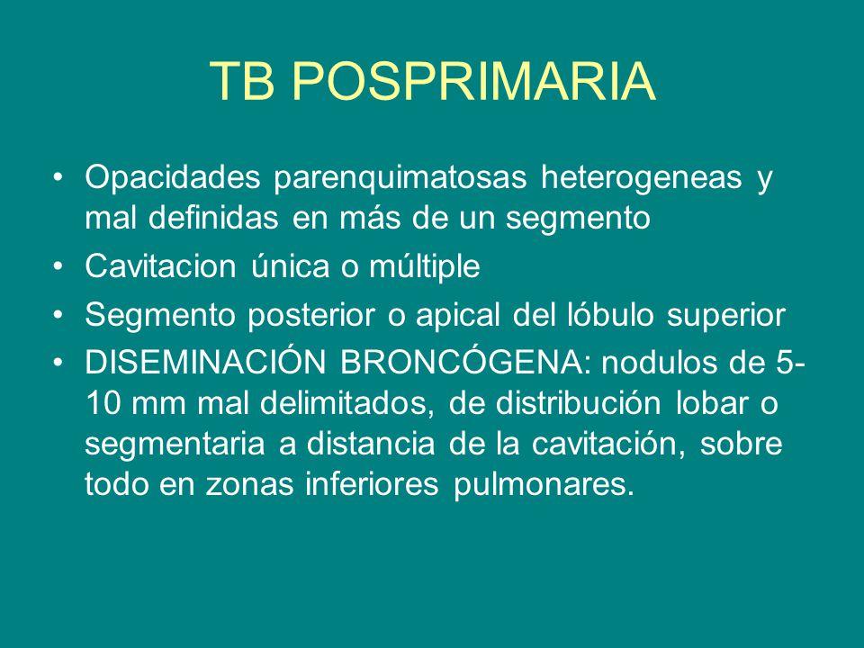 TB POSPRIMARIA Opacidades parenquimatosas heterogeneas y mal definidas en más de un segmento Cavitacion única o múltiple Segmento posterior o apical d