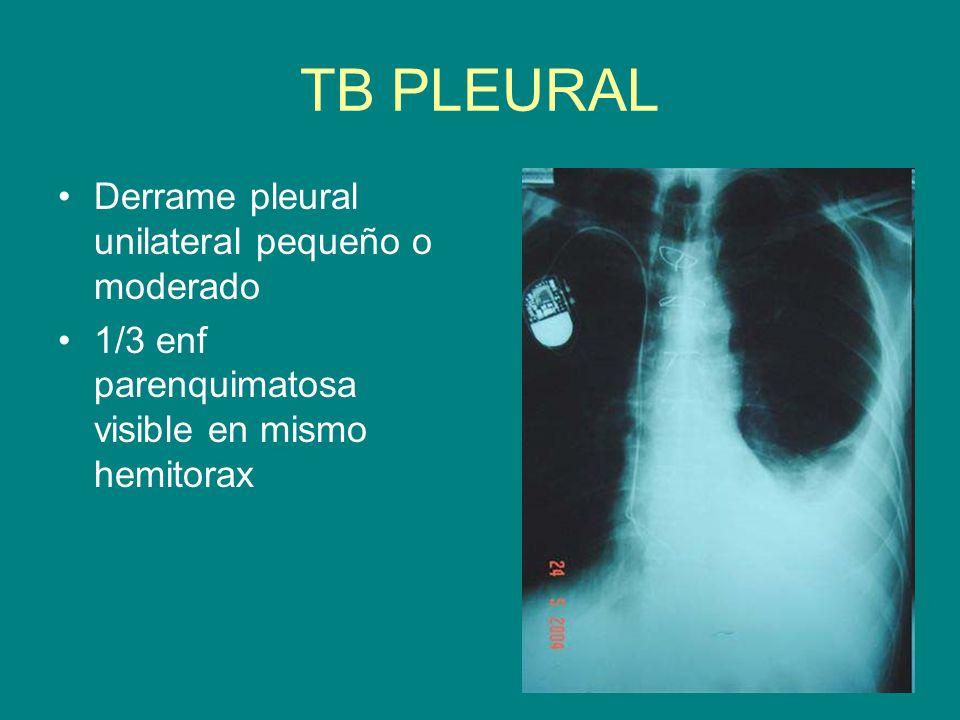 TB PLEURAL Derrame pleural unilateral pequeño o moderado 1/3 enf parenquimatosa visible en mismo hemitorax