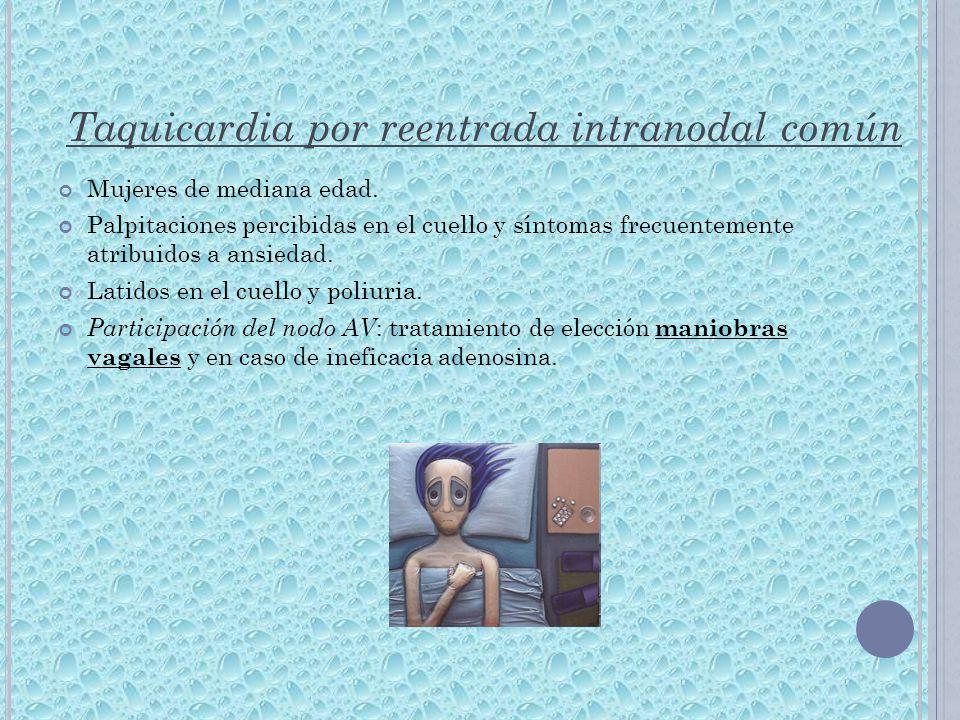 Taquicardia por reentrada intranodal común Mujeres de mediana edad. Palpitaciones percibidas en el cuello y síntomas frecuentemente atribuidos a ansie