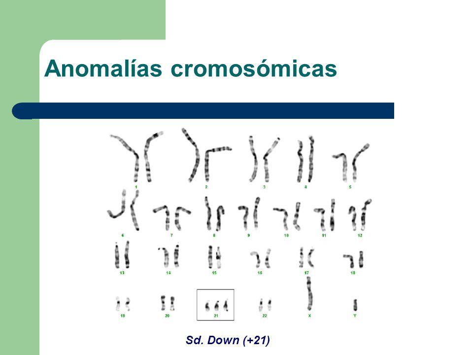 Sd. Down (+21) Anomalías cromosómicas