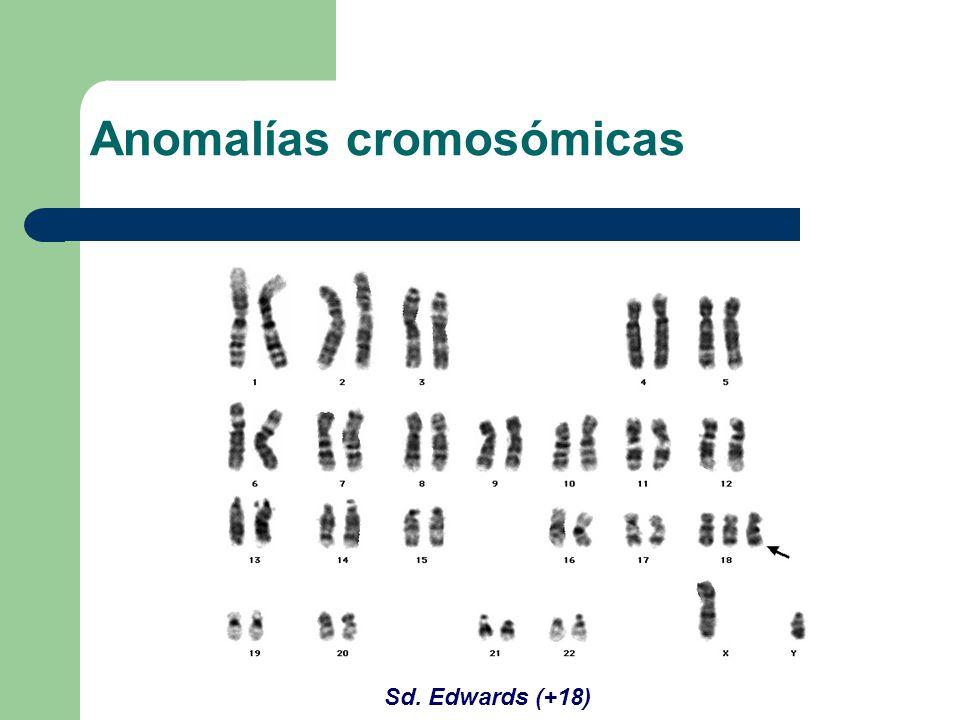 Sd. Edwards (+18) Anomalías cromosómicas